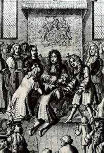 The King's Evil - Charles II